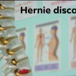 Hernie discale : la plus fréquente des lombalgies dans les carnets de santé